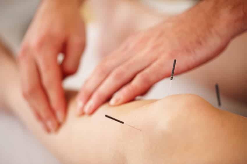 Fine acupuncture needles